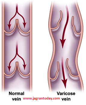 What is Varicose Veins and How to Protect form It