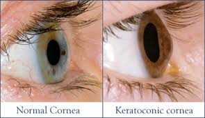 Keratoconus-eye-symptoms-causes-treatment-surgery