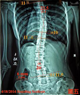 脊椎側彎, 脊椎度數,脊椎側彎矯正, 脊椎側彎矯正運動, 脊椎側彎治療, 脊椎側彎矯正成功案例, 脊椎側彎 推薦, 脊椎側彎 台中
