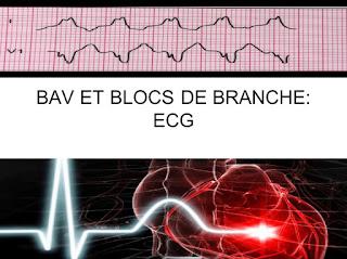 BAV ET BLOCS DE BRANCHE: ECG .pdf