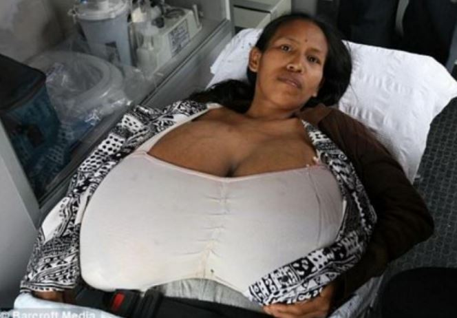pictures-of-growing-breasts
