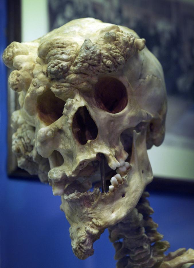 O crânio do famoso Homem Elefante