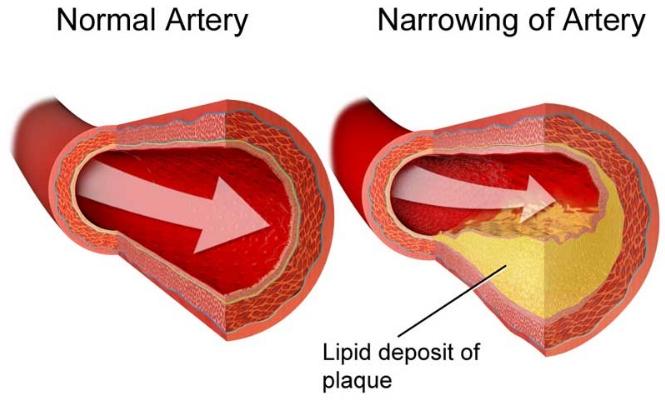 Cara Menurunkan Kolesterol Tinggi Secara Alami, Cepat dan Mudah