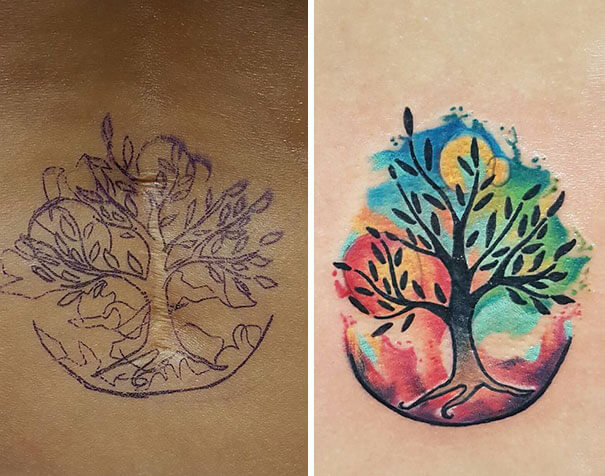 25 Beautiful Tattoos That Transformed Scars Into Artworks