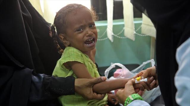 400 mil niños en riesgo de muerte en Yemen por el bloqueo saudí