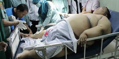 Bocah Berbobot 180 Kg Ini Meninggal Dunia, Jenazahnya Disholatkan Di Mobil Ambulans