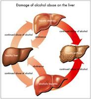 Obat Tradisional Untuk Mengobati Penyakit Liver