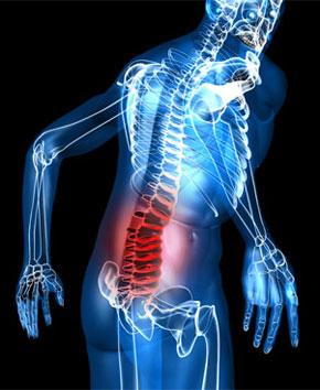 tratament dureri coloana