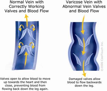 Vein Valve, Gambar katup vena normal dan perbandingannya dengan yang mengalami kerusakan, arus alirah darah, pembuluh, varises