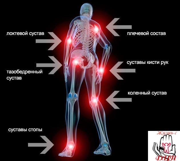 Болезненный хруст в суставах лечение лазером суставов