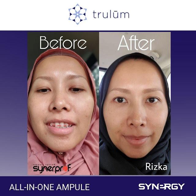 Jual Serum Penghilang Keriput Trulum Skincare Pulang Pisau Kalimantan Tengah