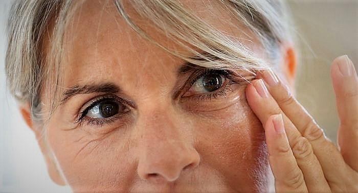Göz Kapağı Germe Operasyonu Nedir, Kimlere Uygulanır?