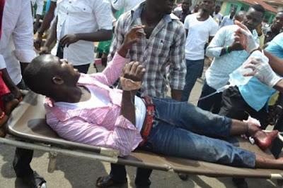 kwara polytechnic student shot on the leg