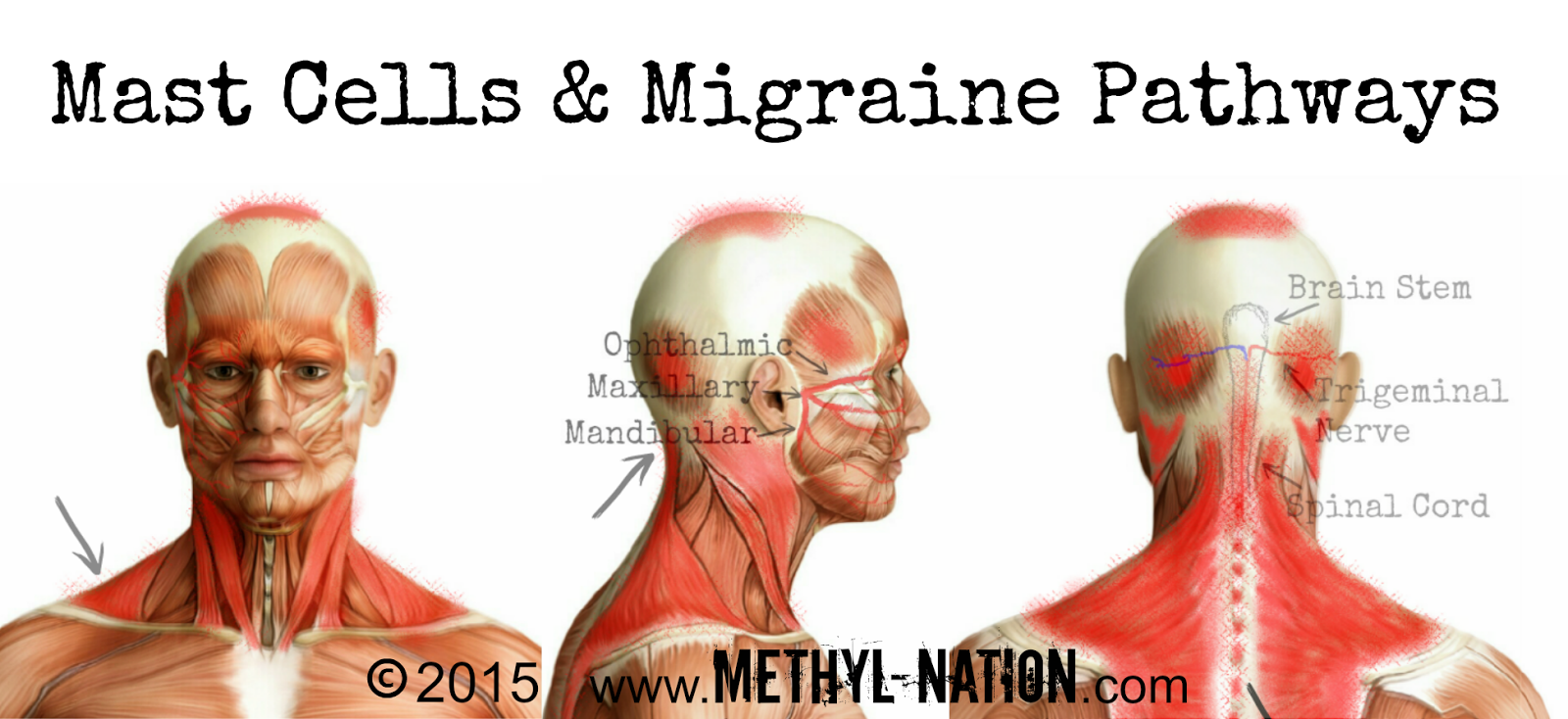 http://www.methyl-nation.com/2015/01/mast-cells-migraine-pathways.html