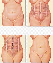 All You Need To Know About The Tummy Tuck - healthy t1ps