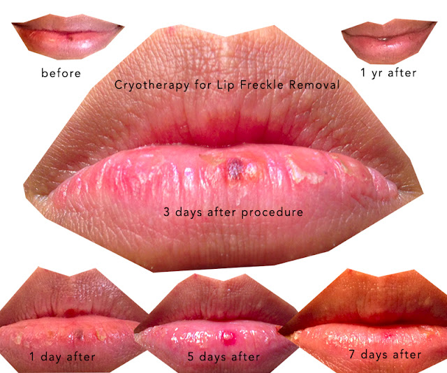 lip freckle removal, cryotherapy lip freckle, labial melanotic macule
