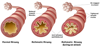 visible illustration of airway of asthma patient
