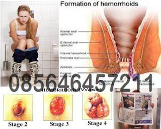 Bahaya Penyakit Wasir Berdarah Akut dan Obatnya
