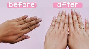 Remove Hand Sun Tanning