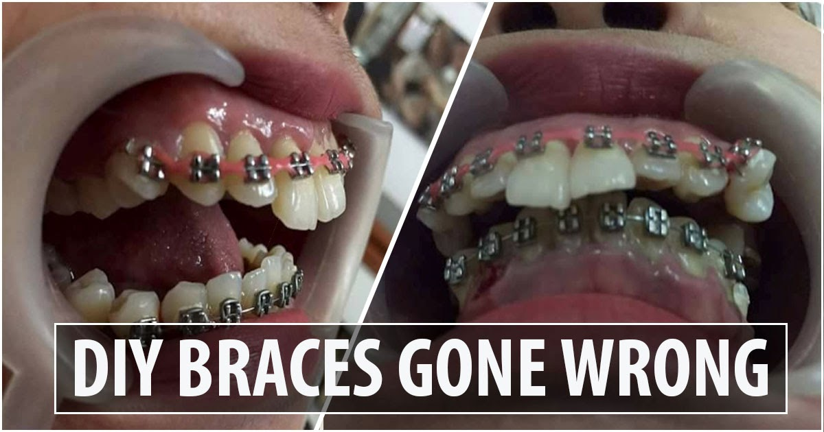 A Woman Whose Diy Dental Braces Terribly Gone Wrong News