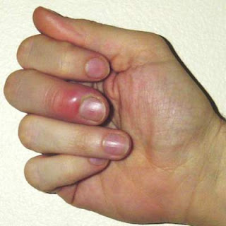 picture of paronychia by picking at a hangnail