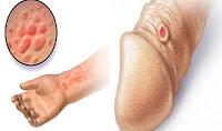 Pengobatan Herbal Penyakit Sipilis pada Pria dan Wanita