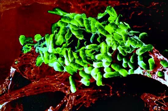 Tifus epidémico; Rickettsia prowazekii