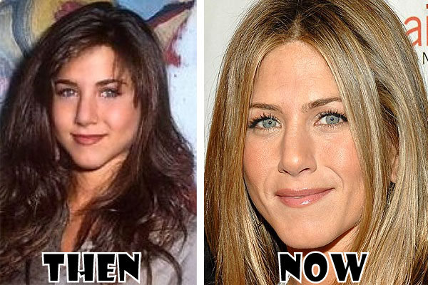 Chatter Busy: Jennifer Aniston Plastic Surgery