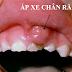 Áp xe răng là gì ? Nguyên nhân và cách điều trị hiệu quả