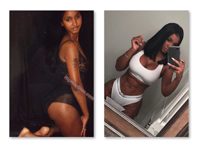 How Old Is Bernice Burgos? Before And After Plastic Surgery