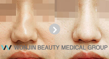 Nose Health and Beauty with Korea Rhinoplasty Surgery