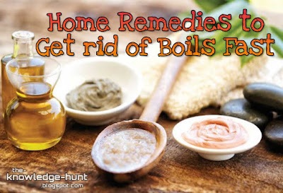 Home remedies to get rid of boils fast | The Knowledge Hunt