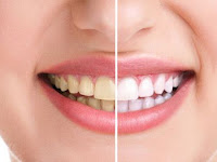 Menjadikan Gigi Kuning Bersih dan Putih