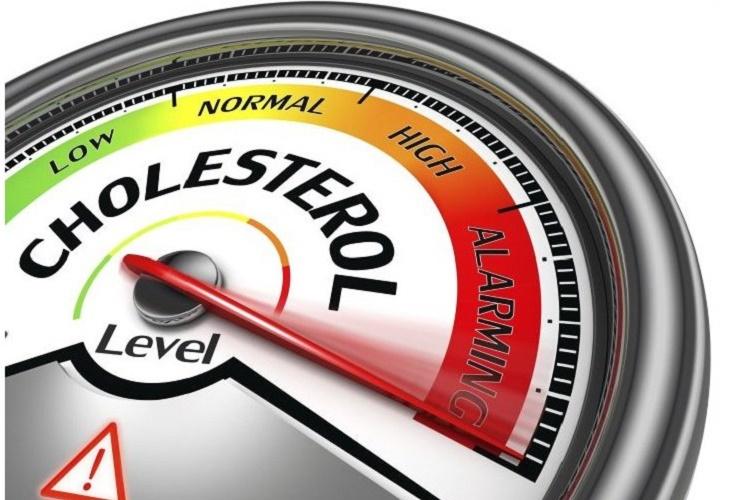 Kolesterol Penyebab Stroke Yang Harus Diwaspadai