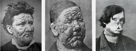 penyakit kusta atau lepra yang cukup berbahaya