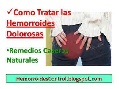 Como-Tratar-las-Hemorroides-Externas-Dolorosas-Remedios-Caseros