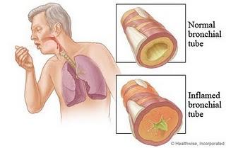 Kenali Tanda-Tanda Penyakit Bronkitis dan Cara Pengobatannya