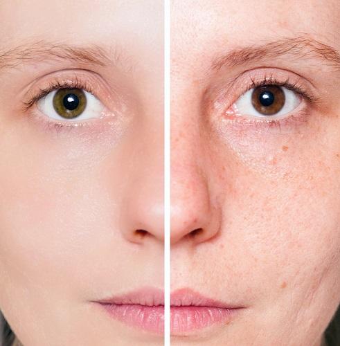 acne rosacea cura definitiva