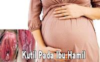 salep obat kutil kelamin yang aman untuk ibu hamil, Obat Kutil Kelamin Aman untuk Ibu Hamil dari Ramuan Tradisional