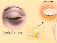 6 ways to reduce dark circles eyes