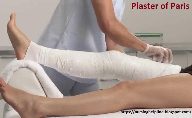 Plaster of Paris splint in orthopedics