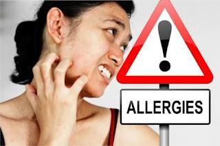 Beberapa jenis Alergi http://www.udan.name