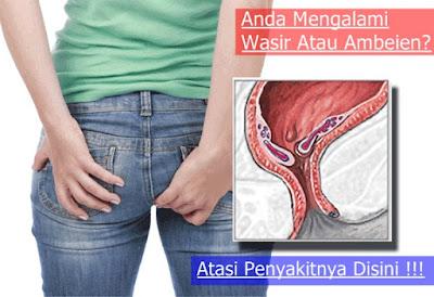 Gambar Obat  pegal pegal di area anus dan nyeri topcer untuk