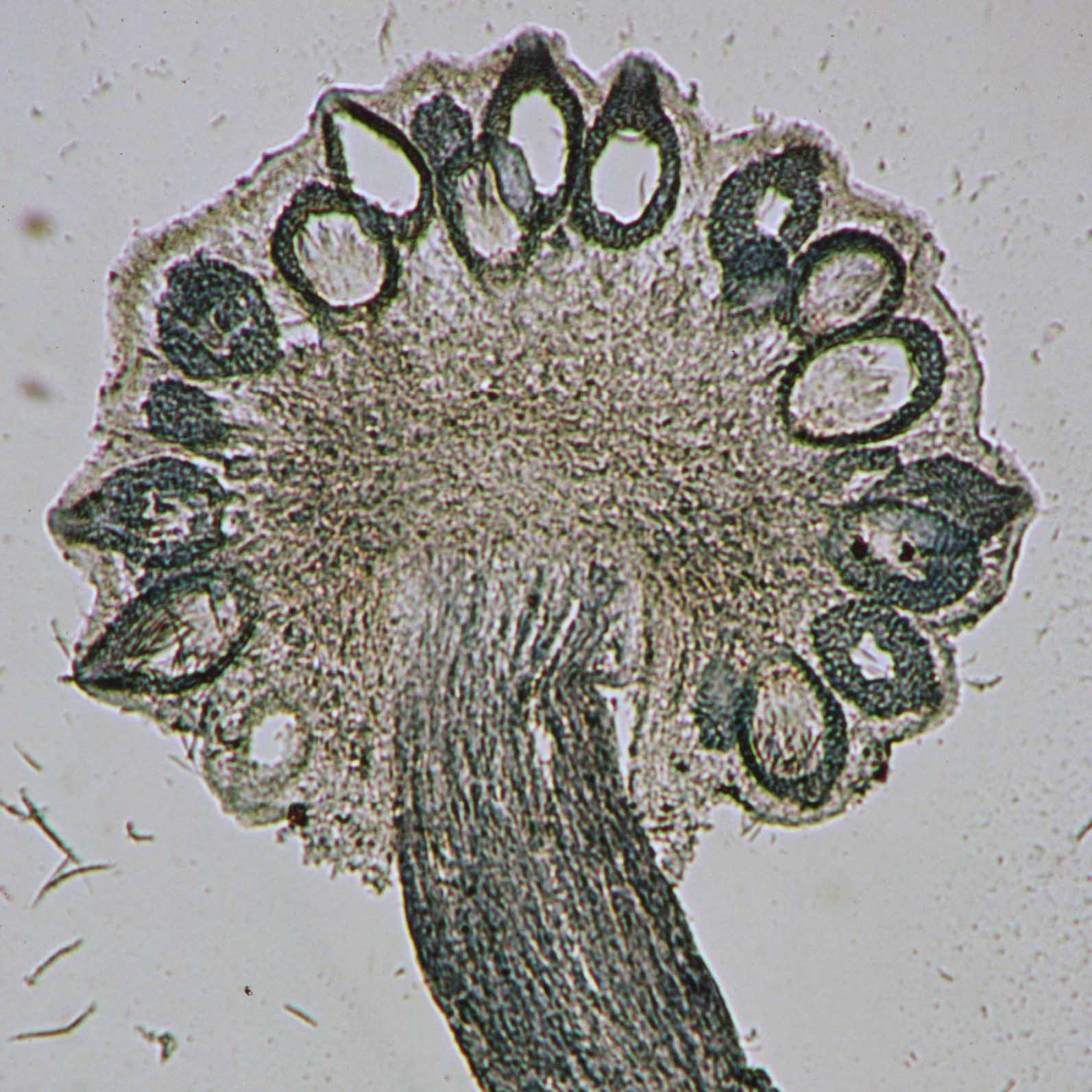 Jenis-Jenis Fungi dan Peranannya | Vilya Han