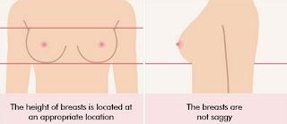 bentuk tubuh yang cocok untuk operasi payudara Korea implan bulat 02