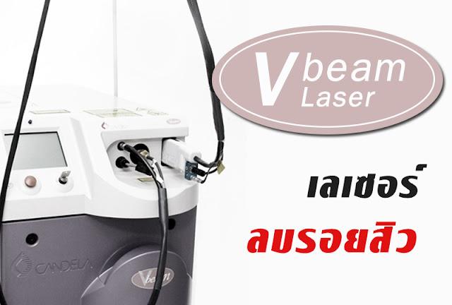 รักษารอยแดงสิวด้วย Vbeam Laser