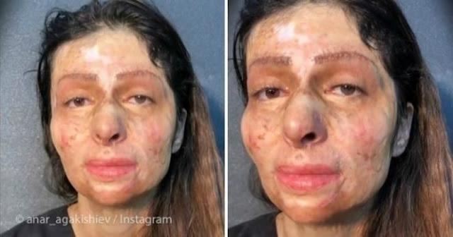 Женщина с изуродованным лицом никогда в жизни не красилась. После перевоплощения она не могла сдержать слёз!