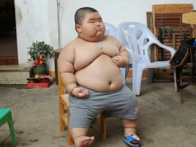 Foto Anak Obesitas