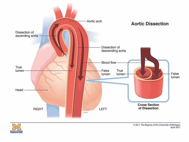 Cold Weather, Aortic Dissection, Strokes and Ischemic Events