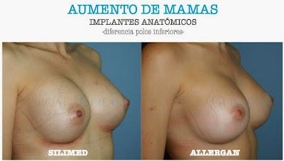 aumento_pecho_madrid
